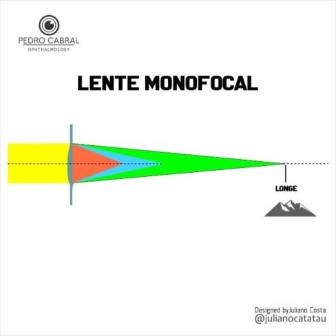 Lente monofocal