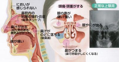 大阪府豊中市 おがわ耳鼻科 OGAWA Ear Nose Throat Clinic|當院で扱う疾患 鼻の病気 副鼻腔炎