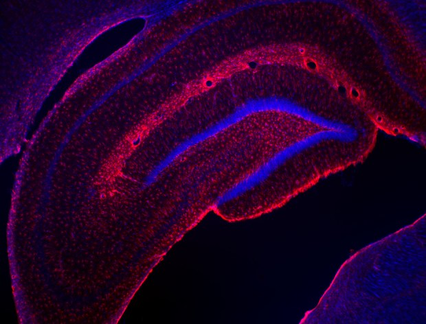 ippocampo ricerca cervello