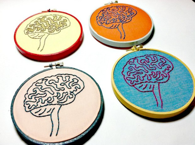 cervello ictus stroke