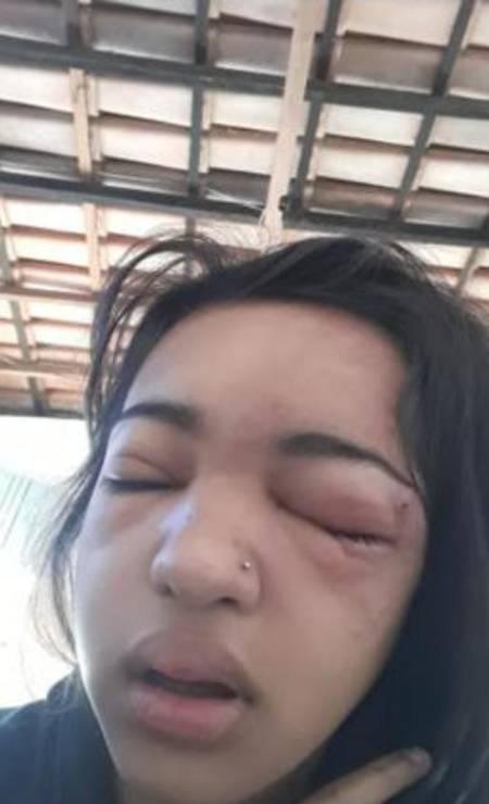 Izabela Eduarda de Sousa teve infecção generalizada após perfurar a sobrancelha em casa Foto: Arquivo pessoal