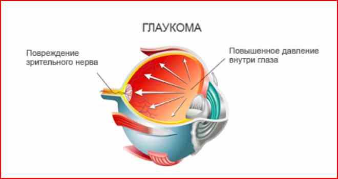 глаукома схема