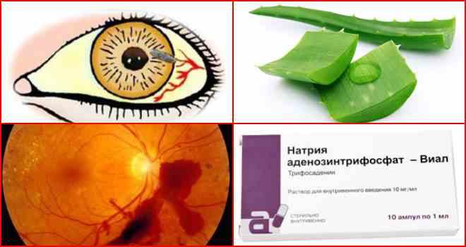 глазная гипотония