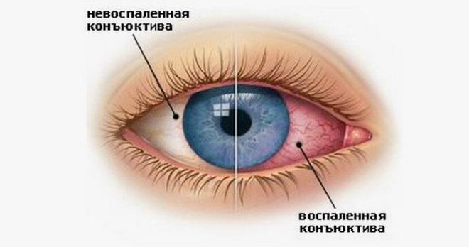 конъюнктивит - покраснение глаз