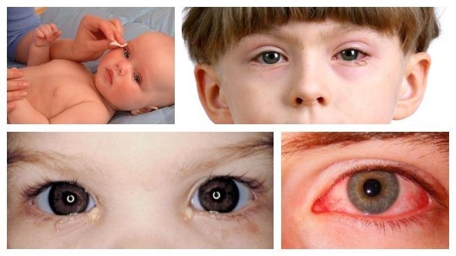 Виды конъюнктивита у детей