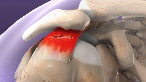 omuzda kas yırtılması için fizik tedavi hareketleri ile ilgili görsel sonucu