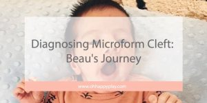 microform cleft lip, microform cleft in babies, baby with minor cleft lip, minor cleft lip, Joaquin Phoenix microform, beau's journey, microform, baby cleft