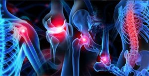 musculoskeletal-injuries Ohio Therapy Centers