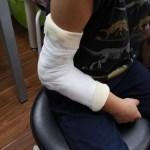 新中野の大木接骨院で橈骨骨幹端骨折、上腕骨外顆不全骨折への固定1
