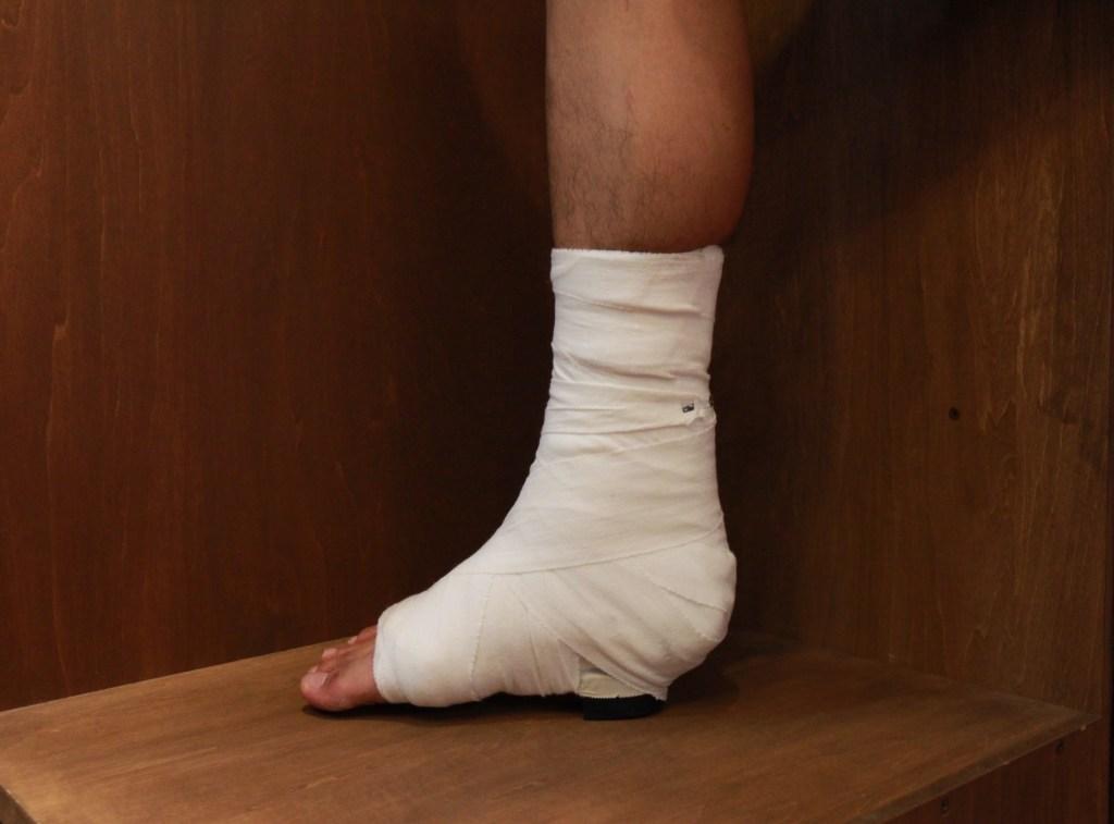 アキレス腱断裂の固定
