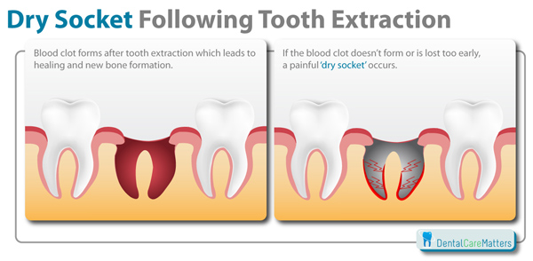 Dry Socket Following tooth Extraction