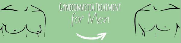 Gynecomastia Treatment Options