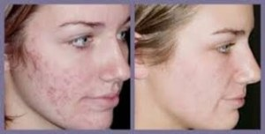 Evening-Primrose-Oil-Acne-Before-and-After-Picture-2 (1)