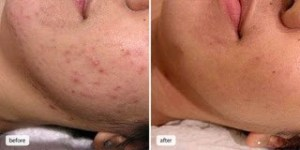 Evening-Primrose-Oil-Acne-Before-and-After-Picture-4