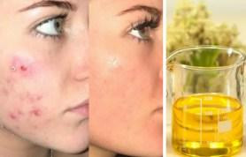 epo-acne