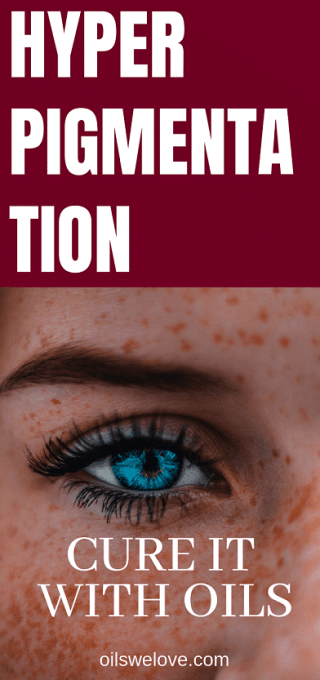 how-to-cure-hyperpigmentation