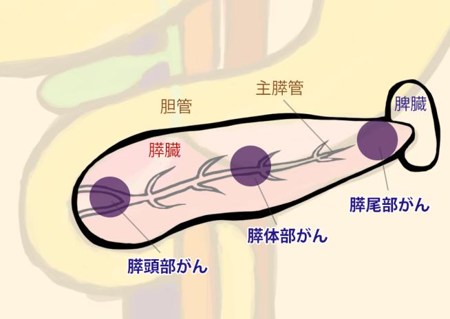 膵臓がんの部位 主膵頭部がん、膵体部がん、膵尾部がんに分けられています。