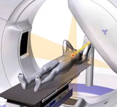 四次元定位放射線治療のイメージ図