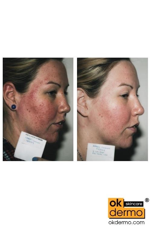 Metrogyl®/Topmetro® Gel 30g/1.05oz   OKDERMO® Skin Care