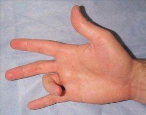 p3 300x236 - Parmaklarımız Niçin Çıtlar?
