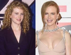 Nicole Kidman 300x234 - Ünlülerin Genç ve Yaşlı Halleri