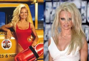 Pamela Anderson 300x206 - Ünlülerin Genç ve Yaşlı Halleri