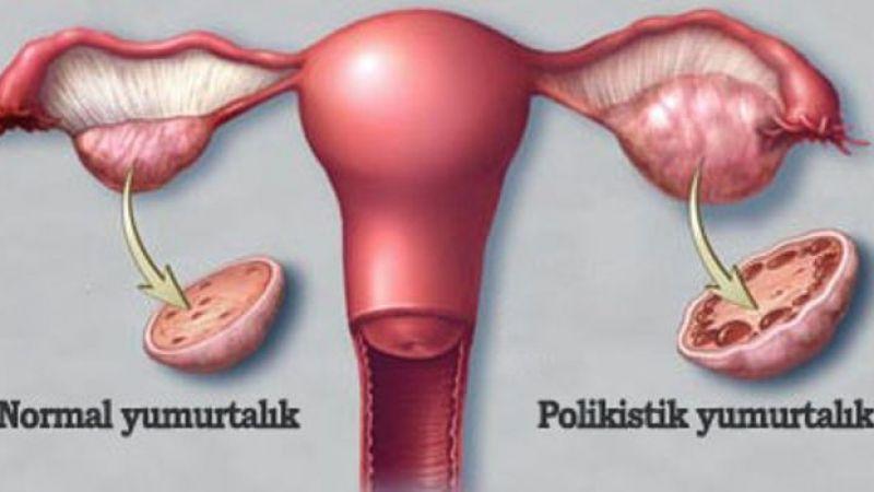 Polikistik over sendromu (pkos) nedir? Nasıl korunabiliriz?, OkuGit.Com - Tarih, Güncel, Kadın, Sağlık, Moda Bilgileri Genel Bloğu