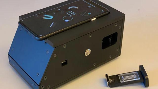 telefon kamerasiyla teshis yapan covid 19 testi gelistirildi 0 8zhuWHv7 - Telefon Kamerasıyla Teşhis Yapan COVID-19 Testi Geliştirildi