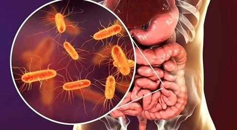 Geçirgen Bağırsak Sendromu Nedir ?, OkuGit.Com - Tarih, Güncel, Kadın, Sağlık, Moda Bilgileri Genel Bloğu