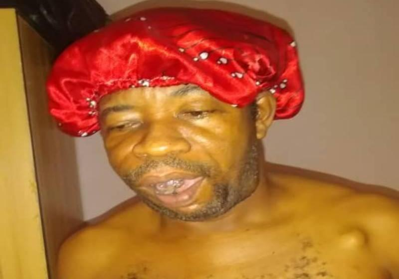 After Planning His Burial, Man Got Healed of Stage 4 Cancer (Photos)