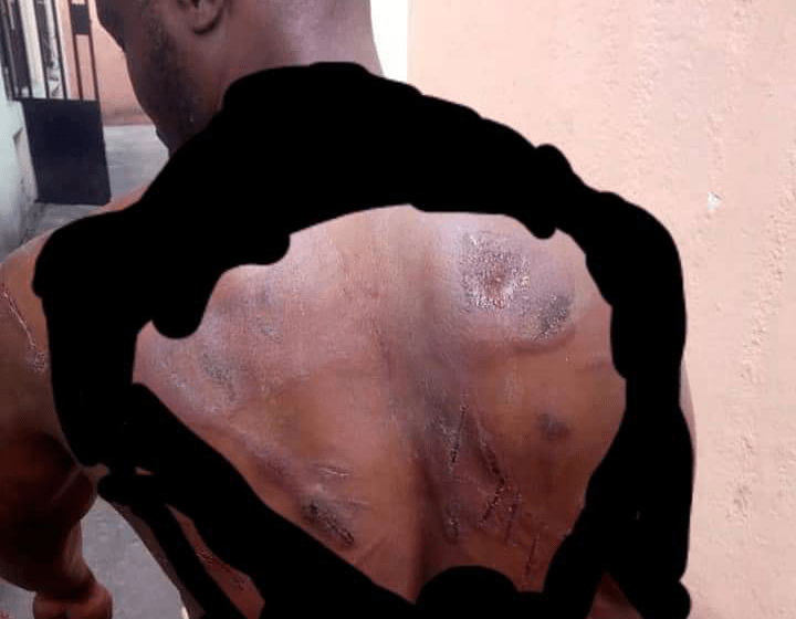 Local Vigilante Allegedly Machetes Man For Refusing to Pay Matching Ground (Photo)