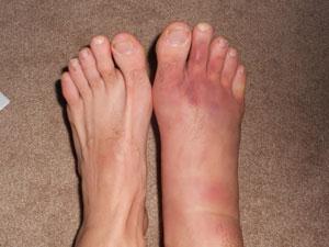 sprained foot muay thai injury
