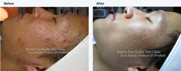 Acne Therapy By Face Reality