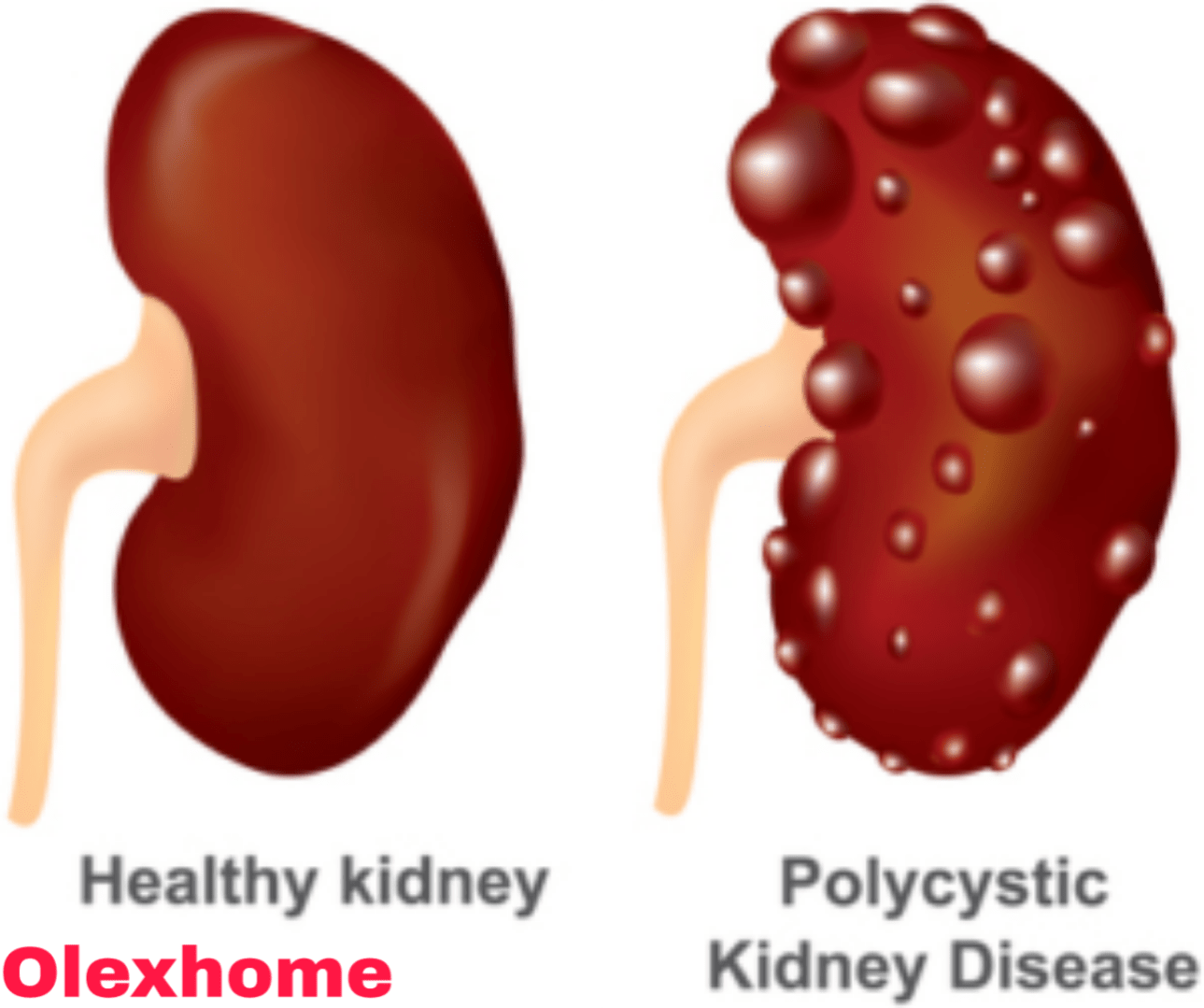 Things that harm your kidneys but you don't know