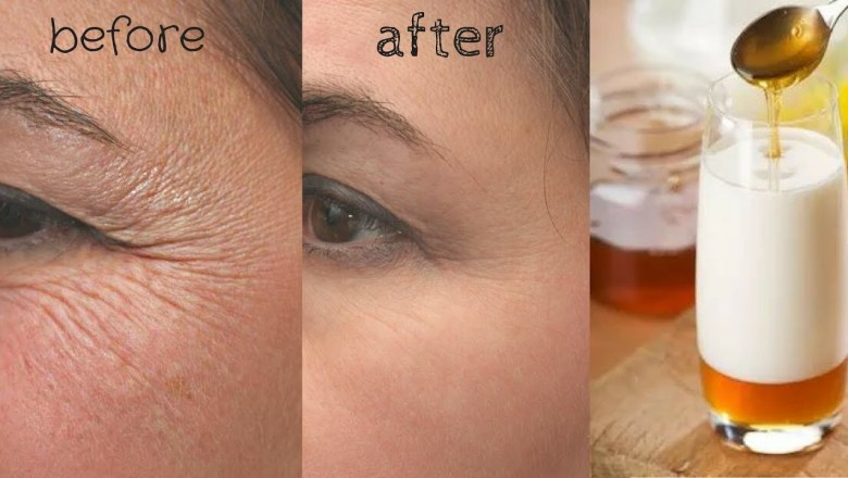 VERY STRONG ANTI AGEING TREATMENT FOR WRINKLES, EYE CIRCLES & FINE LINES