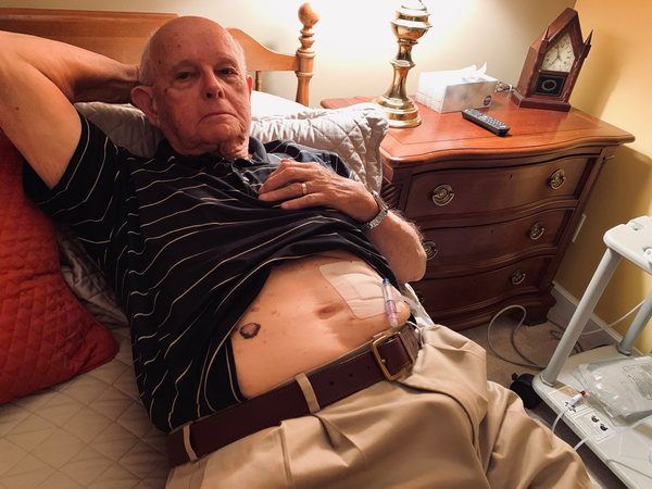 The Challenges of Home Dialysis