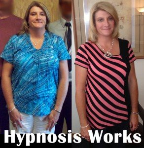 Hypnosis works for losing weight