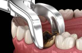 Tooth Extraction Healing Time | Omega Dental Houston TX