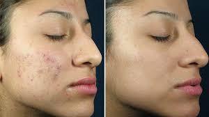 kemicni-piling-dermatoloska-klinika