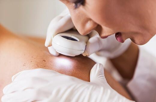 korekcija-brazgotin-z-dermatolosko-tehniko