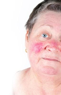 rozaceja-zdravljenje-rdecice-obraza