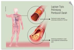 Lapisan tipis pelindung pembuluh darah