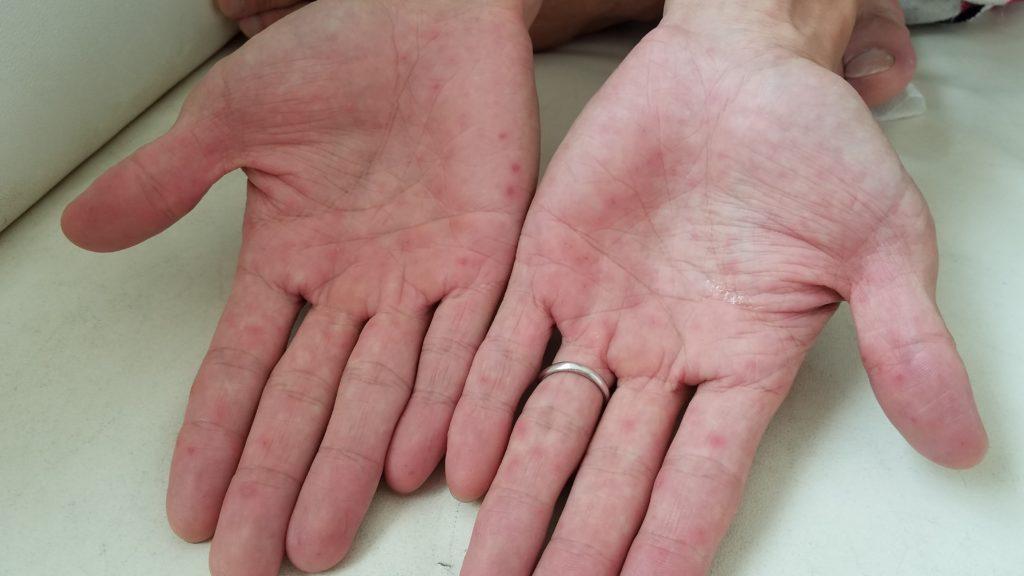 手足口病の癥狀 初期大人の畫像は?うつる?薬は治療法、會社はどうする? | オモイデデポ-出産・育児 ...