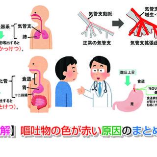 【まとめ】嘔吐物が緑の時は何が原因の可能性が高い?   お腹の相談所