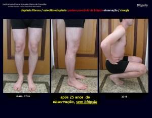 Da óssea após biópsia ciática medula