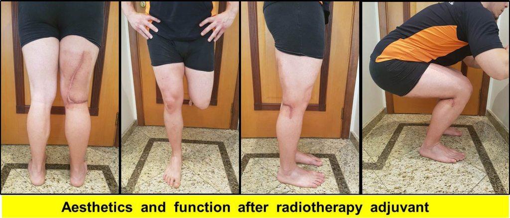 funcao-cirurgia-tumor-joelho