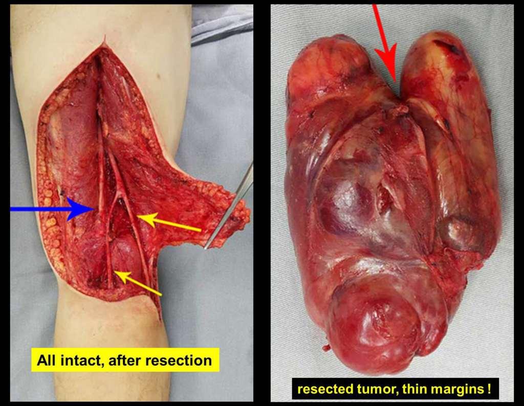sarcoma-tecidos-moles-resseccao