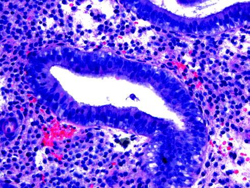 Stromal breakdown pathology