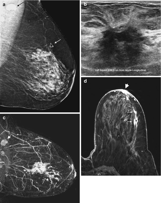 Mri And Preoperative Staging In Women Newly Diagnosed With Breast