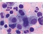 Chapter 11 – Myelodysplastic/Myeloproliferative Neoplasms